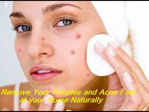 best ideas to remove pimples rids