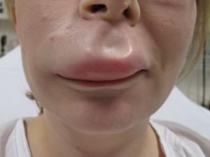 Dermal Fillers Lip Augmentation side effect