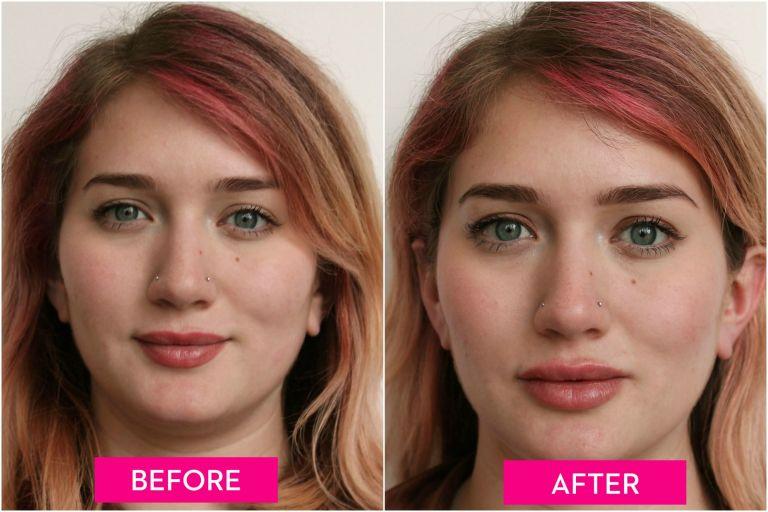 Lip Augmentation techniques benefits procedure