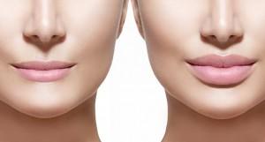 lip augmentation types surgery techniques
