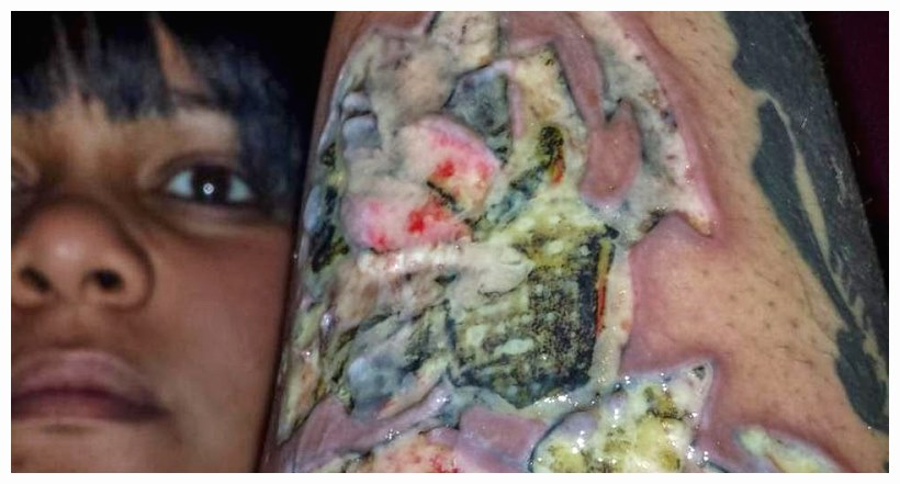 10 Dangerous diseases may arouse after skin tattooing