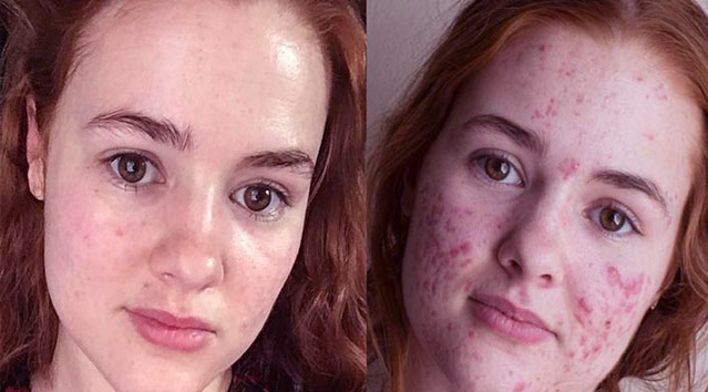 The Best Way To Treat Hormonal Acne Now